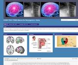 CASD 7313 / 7326X Mecca for Neurogenics
